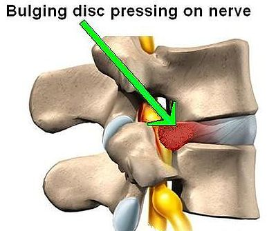 Bulging disc pressing on nerve - Spinal Decompression Therapy at Chiropractic Clinic Toronto