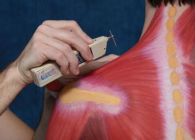 Contemporary Medical Acupuncture - Dr. Adrian Cohen Toronto Chiropractor
