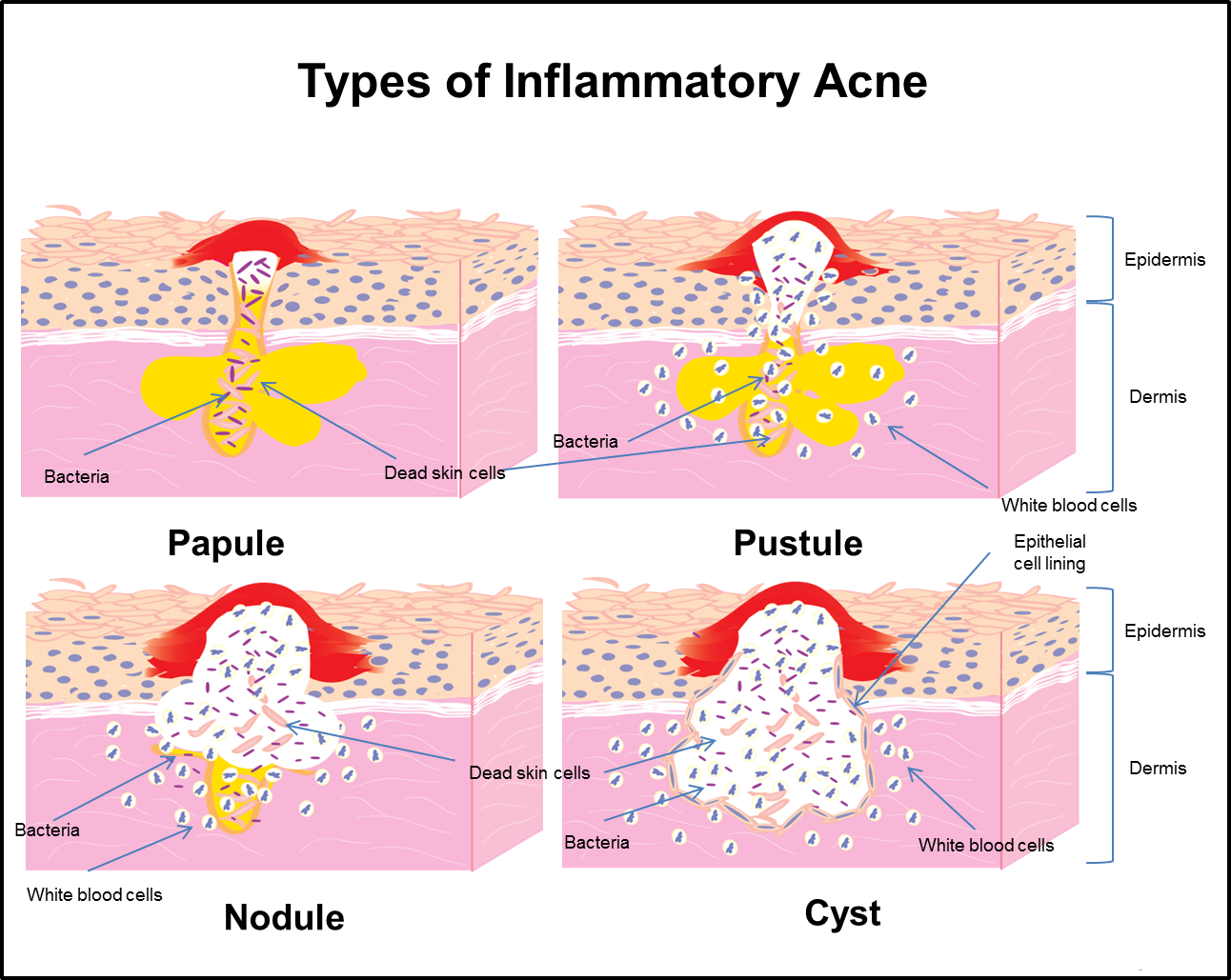 an examination of the skin disease acne vulgaris Backgroundin westernized societies, acne vulgaris is a nearly universal skin disease afflicting 79% to 95% of the adolescent population in men and women older.