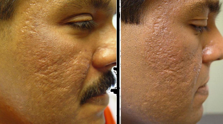 Skin Rejuvenation Clinic Toronto Laser Acne Scar Removal