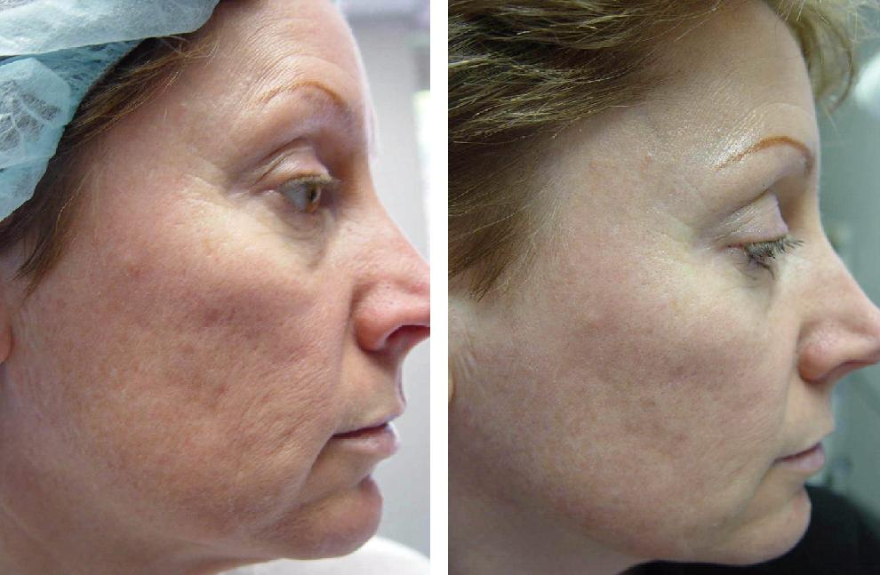 Nd yag laser for facial scar