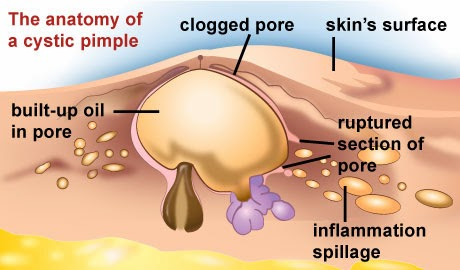 What happens if your acne ruptures